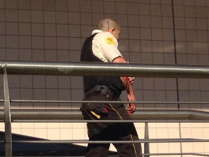 Vigilante ferido após troca de tiros com assaltante (Foto: paraiba.com)
