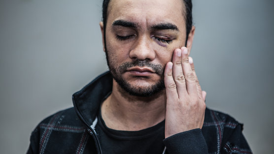 O fotojornalista Sérgio Silva, culpado pela Justiça por ter sido ferido pela Polícia (Foto: Change.org)
